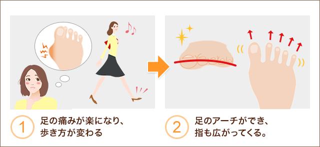 ①足の痛みが楽になり歩き方が変わる ②足のアーチができ、指も広がってくる