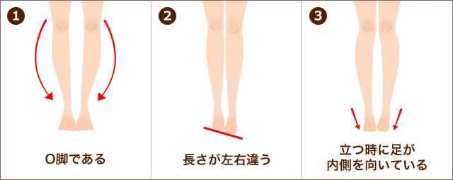 ①O脚である ②長さが左右違う ③立つときに足が内側を向いている